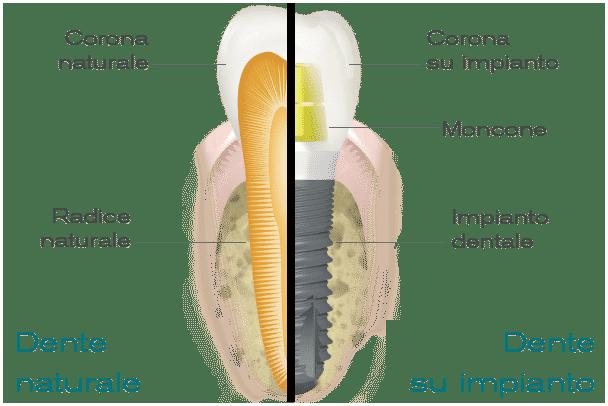 Impianti Dentali Quanti Modelli Dentista Implantologia Prezzi
