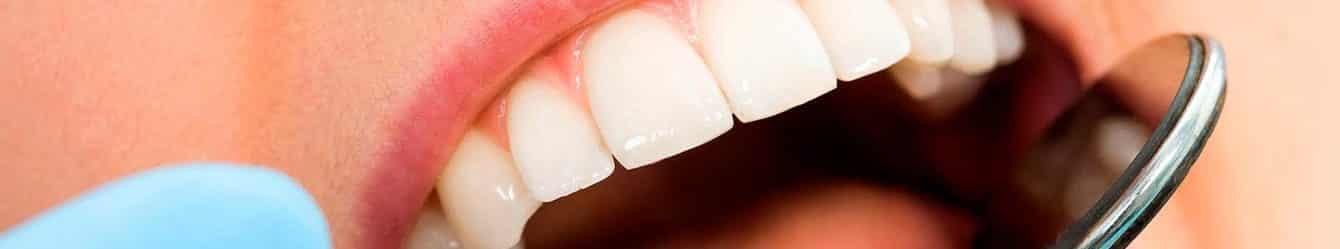 Dentista Implantologia Prezzi